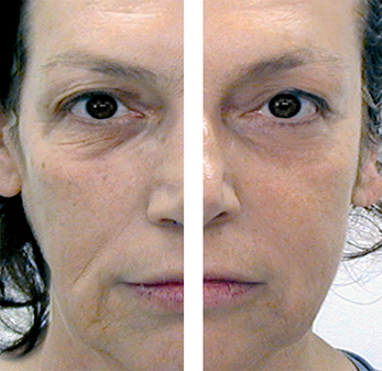 Before & After Treatment Course. Picture Courtesy of CACI International